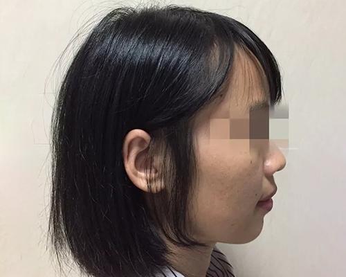 双牙弓前突矫治案例