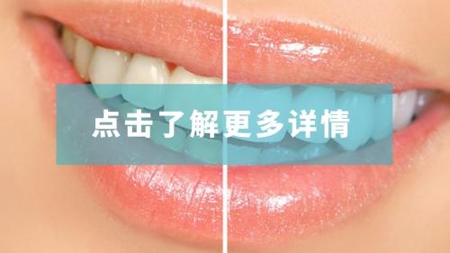 柳州牙齿美容